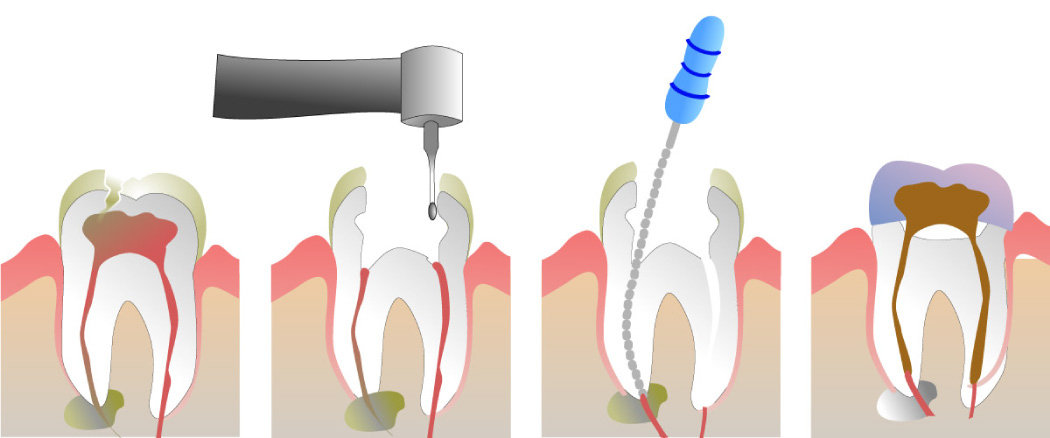 Graphic showing the steps of root canal therapy