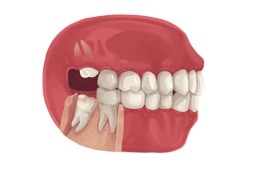 Model of a mouth showing wisdom teeth growing in at bad angles.
